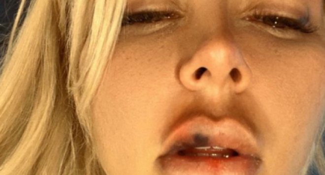 Андреа съди Кобрата за домашно насилие, пребивал я системно