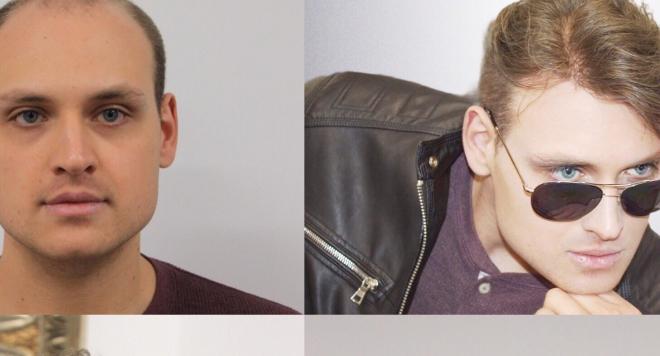 Модерна визия за мъжете с плешивост и оредяла коса от Магама ВИДЕО