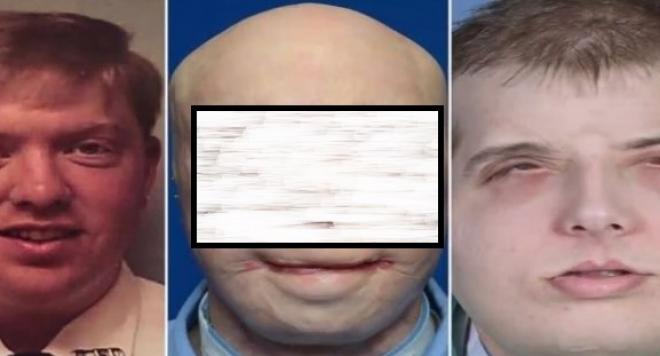 Най-шокиращите трансплантации на лице (ВИДЕО 18+)