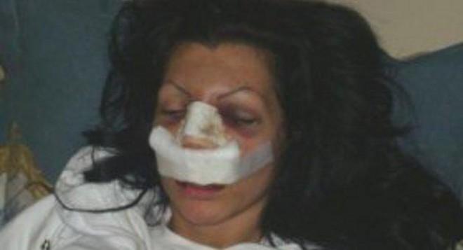 Пребитата моделка Катрин показа обезобразеното си лице